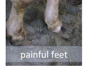 Painful Feet
